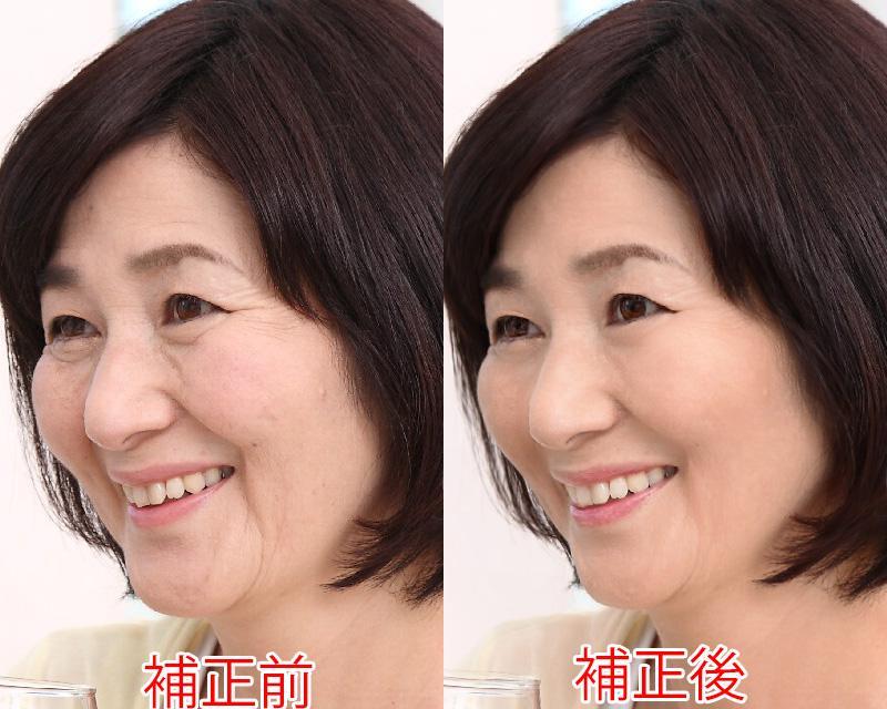 写真に写った顔のシミ、シワ、肌トラブルなど綺麗にします。
