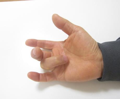 """簡単な指体操だけで治る""""ばね指""""の治療法を教えます えッこんな簡単な指体操で! 即効性にきっと歓喜するでしょう。 イメージ1"""