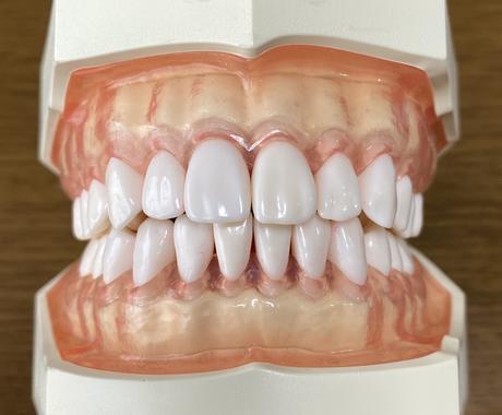 歯科衛生士が歯磨きの質問に答えます 歯医者さんに行かなくても歯科衛生士に歯磨きの相談ができます イメージ1
