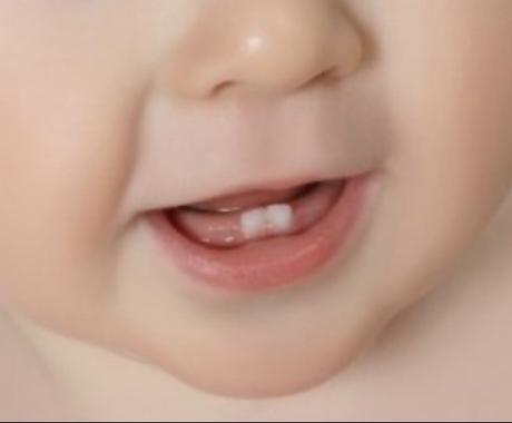 子どものお口のお悩み解決致します 小児歯科衛生士10年のベテランが相談のります! イメージ1