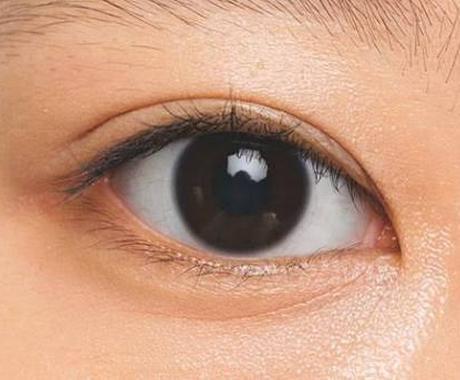 秘技!本気で二重にさせます 重たい瞼の方、奥二重の方はぜひ イメージ1