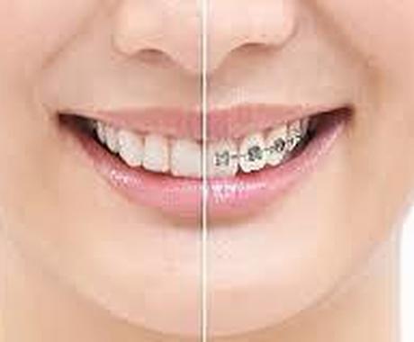 子供の矯正・大人の矯正、歯並びについておしえます 矯正全般について聞きたい方にオススメ イメージ1