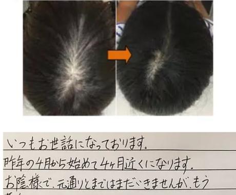 自宅で簡単発毛法!1ヶ月であなたの薄毛改善します 1日¥20+αでミノキシジル以上に発毛させる方法 イメージ1