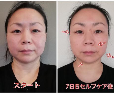 小顔&リフトアップ術 立体的な顔へ~動画で教えます 顔の横幅、長さが気になる方へ。ハンドのみで自分で出来る小顔術 イメージ1