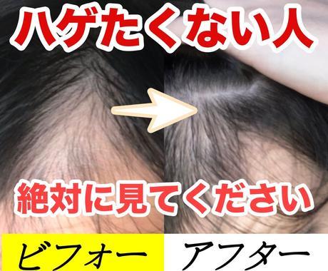 1日約10円から出来るハゲ(AGA)解決策教えます 実践価値アリ!毛髪診断士に聞いた薄毛改善策を暴露します イメージ1