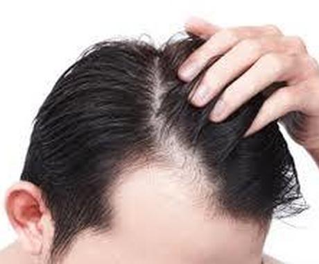 薄毛の悩み、未然に防ぐための解決策をお教えします 薄毛は自信を無くし、常に周りを気にしてしまいます イメージ1