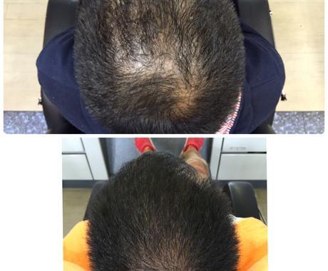 身体の悩みから抜け毛の原因解明します アンケートから抜け毛の原因特定します! イメージ1