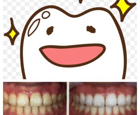歯科衛生士が歯を白く健康にするお手伝いをします 矯正?ホワイトニング?いろんな歯の疑問にお応えします! イメージ1