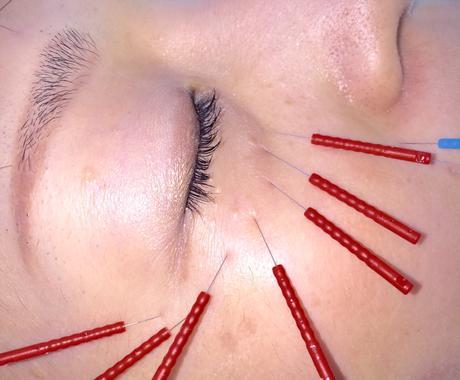 ⭐️ほうれい線、フェイスライン、目の下の弛み、小じわ、乾燥肌、本当に効果がでる方法とは…⭐️ イメージ1
