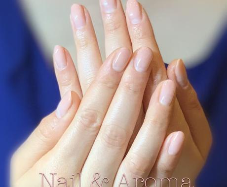 爪のトラブル アドバイス致します ジェルネイルアレルギー経験者だからできる 爪のトラブル対策 イメージ1